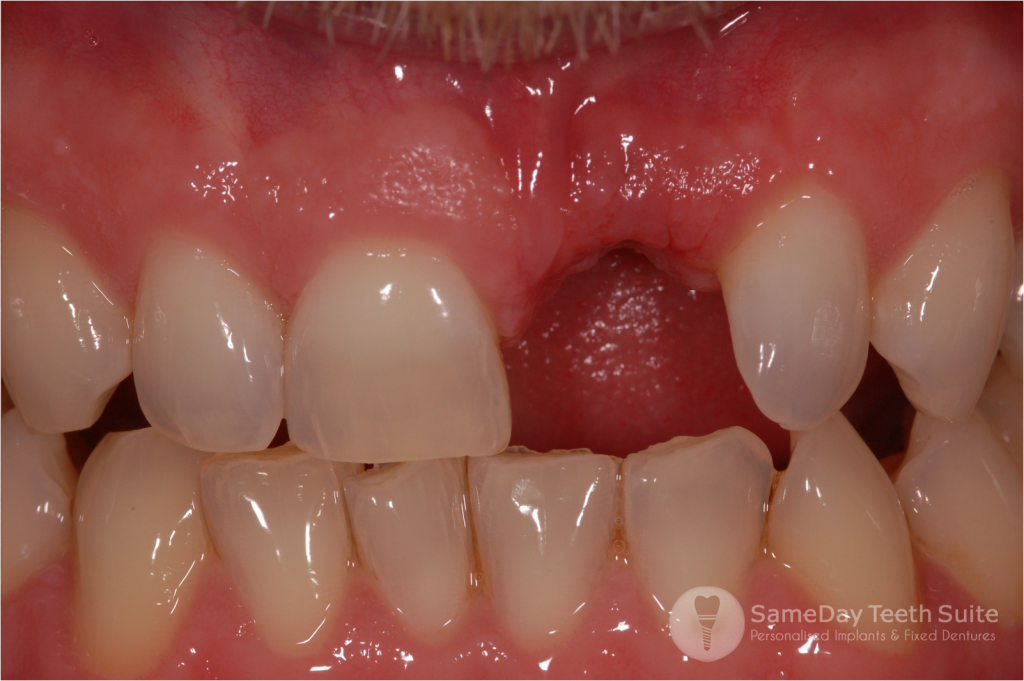 Same day teeth suite nottingham sameday teeth suite 1 solutioingenieria Image collections