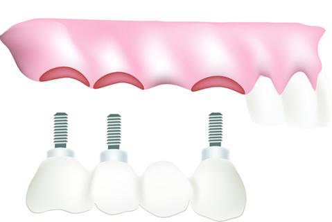 multiple-teeth-bridge-solutions