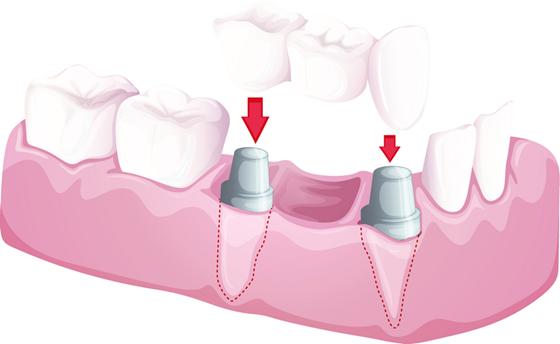 multiple-teeth-bridge-solutions-2