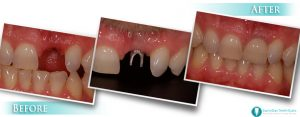 Front tooth implant example