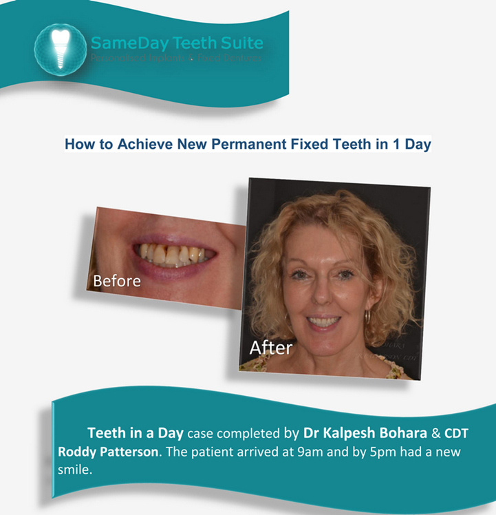 teeth-in-a-day-solutions-2