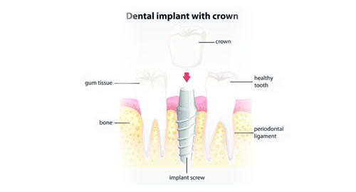 The 4 Stages of Dental Implant Treatment in Nottingham - image