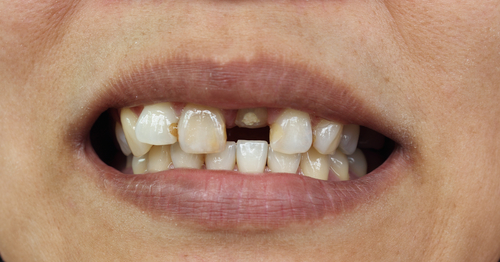 Why replace missing teeth? - image