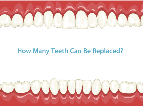 How many teeth can be replaced using dental implants in Leicester? - image