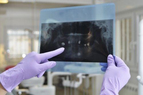 What if you don't have enough bone structure for dental implants in Nottingham? - image