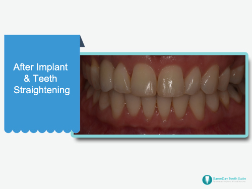 Dental Implants and Teeth Straightening case study in Leicester