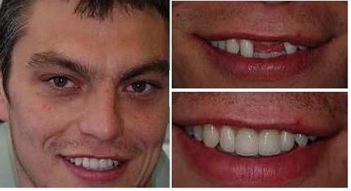 Why Should I Get Dentures? - image