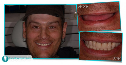 Looking to replace your missing teeth? - image