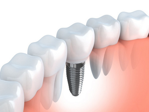 Will My Teeth Look Natural With Dental Implants - image