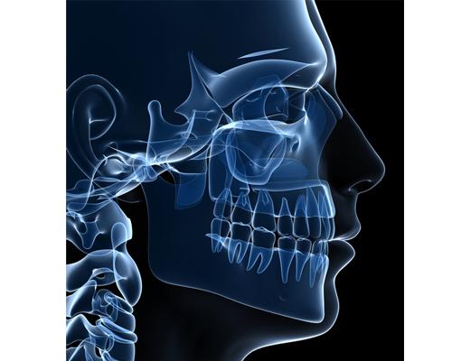 The bone graft procedure in Loughborough - image