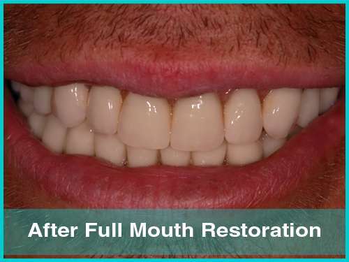 Full mouth restoration patient journey in Nottingham - image