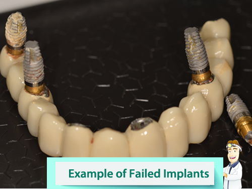 Full mouth restoration patient journey in Nottingham - image