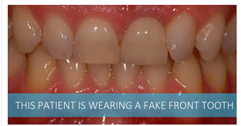 How to get the very best front tooth dental implant in Leicester