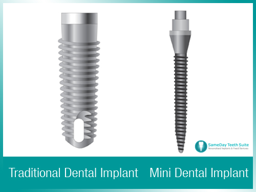 Mini dental implants for better denture stability in Nottingham - image