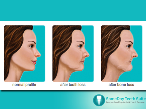 The effects of losing teeth on our facial appearance in Leicester - image