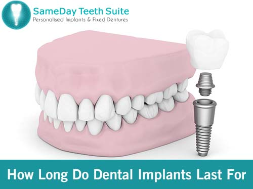 How Long Do Dental Implants Last For In Loughborough? - image