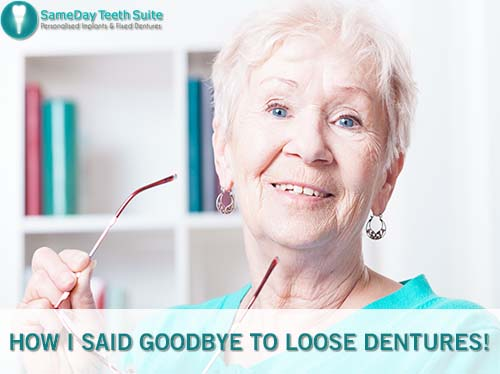 How Can Implant Retain Dentures Replace Loose Dentures In Leicester - image