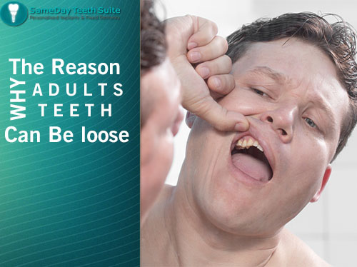 Why are your teeth loose in Loughborough - image