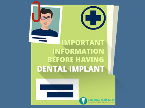 Important Information Before Having Dental Implant
