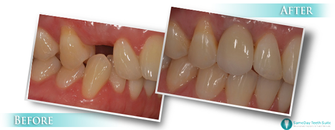 sameday teeth dental implant