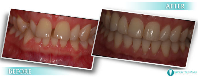 Sameday teeth suite high-quality dental implant