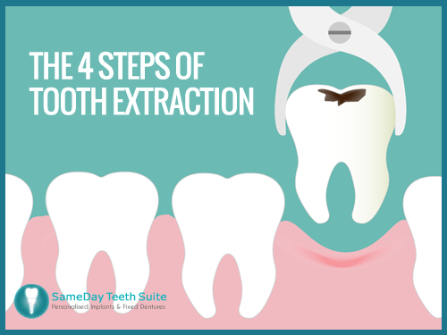 Smile Teeth Png Learn the 4 Steps of T...